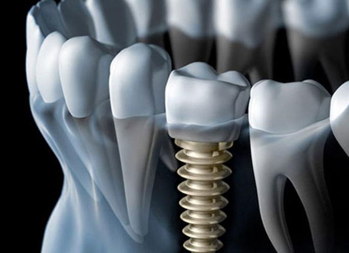 completedeantalcare-implants