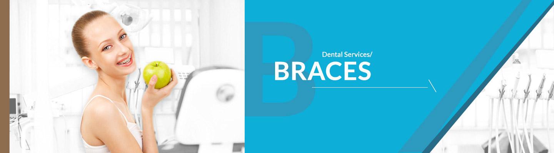 complete-dental-care-braces-banner_01