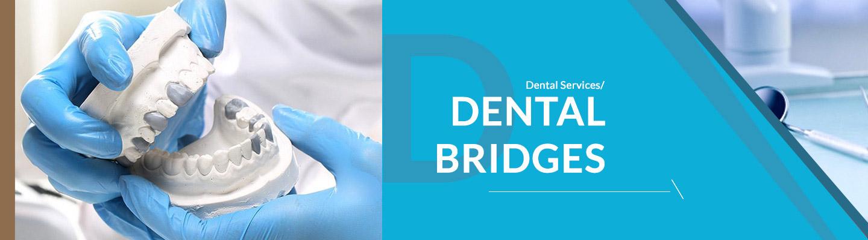 complete-dental-care-dental-bridges-banner_02