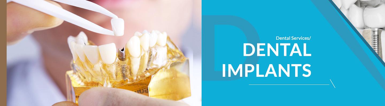 completedeantalcare-implants_01